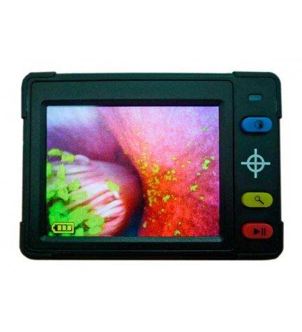 Reflecta 66140 Reading Aid - Lupa digital, ampliación de 5 a 9.5 veces, pantalla LCD, LEDs integrados, color Negro